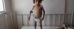 AL JOUMHOURI HOSPITAL, SAADA CITY, YEMEN -  24 APRIL 2017.    Batool Ali, aged 6, stands on a hospital bed in Saada. Batool suffers from severe acute malnutrition. At the time the photograph was taken, Batool weighed only 15.8 kgs and only able to ingest liquids. The small pouch attached to her right arm is a local rural potion wrapped in a bag and used to ward off snakes whilst families take overnight shelter in homemade holes in the desert. During the night, many families leave their houses for the desert shelters in fear of airstrikes on their homes. Two years after the escalation of the conflict, Yemen is facing one of the largest food and protection emergencies in the world and there is broad agreement among humanitarian partners that this man-made disaster could reach a point of no-return in 2017. A staggering 18.8 million people – two-thirds of the country's population – need humanitarian assistance in order to meet their basic needs.
