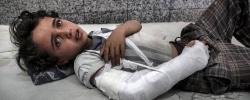 AL JOUMHOURI HOSPITAL, SANA'A, YEMEN - 3 MAY 2017.   A young boy lies in the emergency room awaiting treatment.