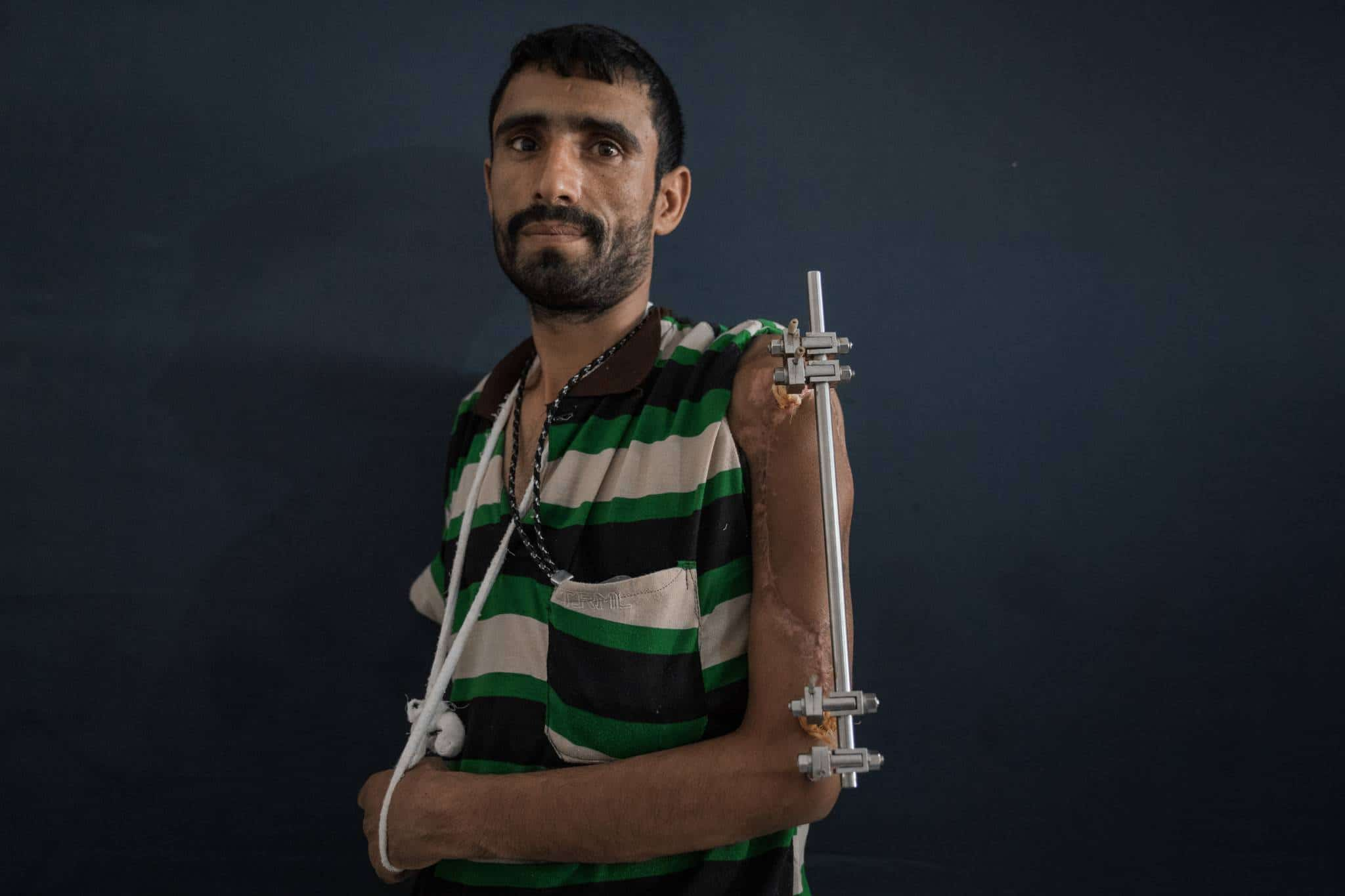 IDP COMMUNITY CENTER, SANA'A, YEMEN - 30 APRIL 2017.  Majed Shoei was injured in Taizz six months ago when a bomb exploded near to him. He broke his arm and leg as a result. He now lives with his brother in Sana'a, having fled Taizz to escape the hostilities and to seek medical treatment.   Money is tight for Majed, who has eight children at home. He used to be a construction worker in Taizz, but now he cannot work due to his medical condition, and cannot afford to pay his medical bills.