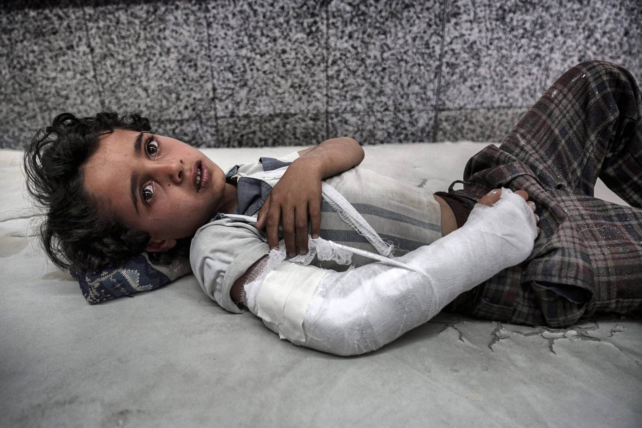 AL JOUMHOURI HOSPITAL, SANA'A, YEMEN - 3 MAY 2017.   A young boy lies in the emergency room awaiting treatment.